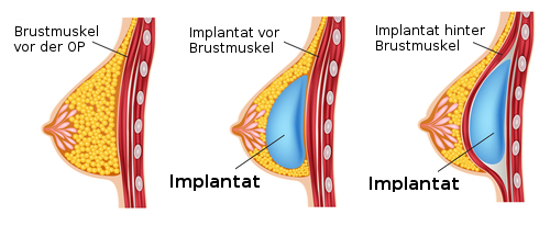 Bruststraffung durch Implantate